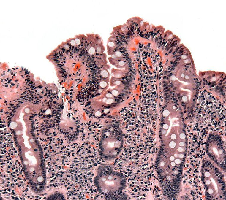 Celiakia poważną chorobą genetyczną